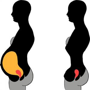 nosenie korzetu po pôrode