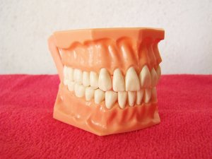 jak umýt zubní kámen